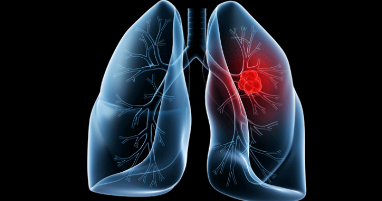 Can You Treat Lung Cancer With Osimertinib